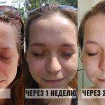 2 недели с корейской косметикой для проблемной кожи: отзыв покупательницы